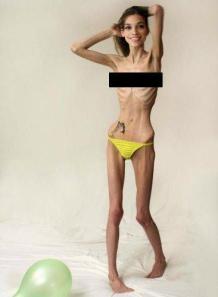 anorexique