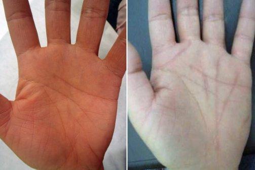 Un chirurgien propose aux superstitieux de refaire leurs lignes de la main Ma1