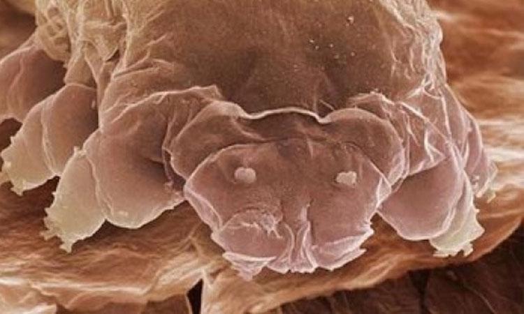 Demodex Folliculorum, l'acarien qui infecte votre visage et qui provoque la couperose (2/6)