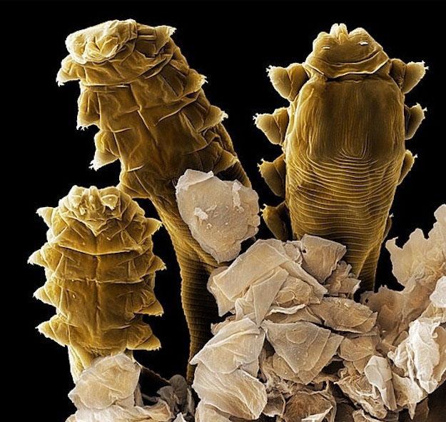 Demodex Folliculorum, l'acarien qui infecte votre visage et qui provoque la couperose (3/6)