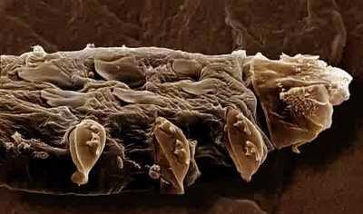Demodex Folliculorum, l'acarien qui infecte votre visage et qui provoque la couperose (4/6)