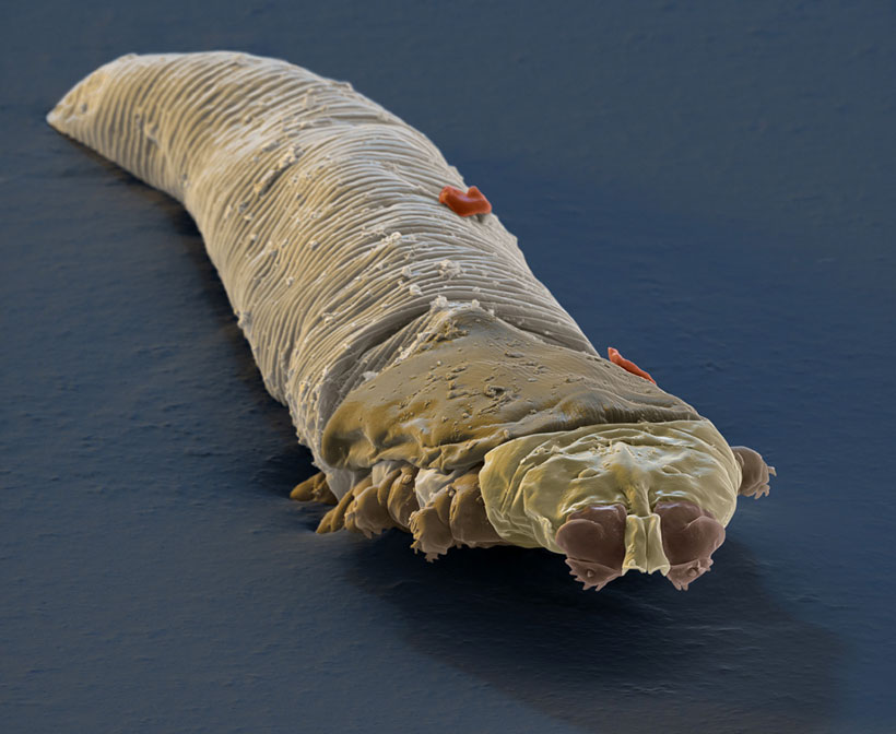 Demodex Folliculorum, l'acarien qui infecte votre visage et qui provoque la couperose (5/6)