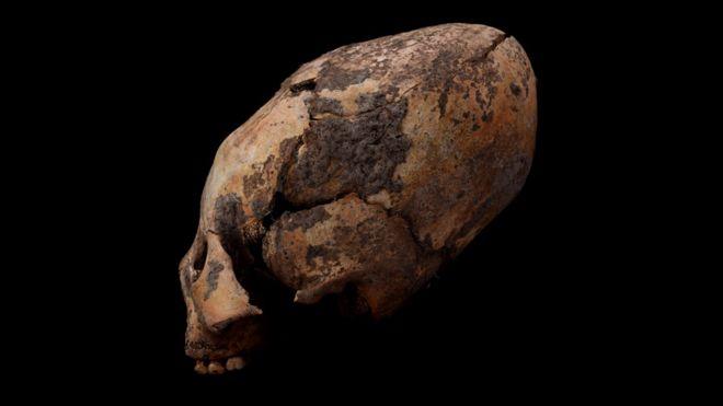 Ces humains se faisaient artificiellement déformer le crâne il y a 5000 ans (vidéo) By Jack35 3-7