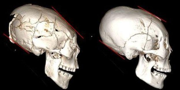Ces humains se faisaient artificiellement déformer le crâne il y a 5000 ans (vidéo) By Jack35 6-5