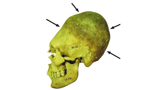Des crânes «  extraterrestres  » déformés offrent des indices sur la vie pendant l'effondrement de l'Empire romain (vidéo) By Jack35 1-13