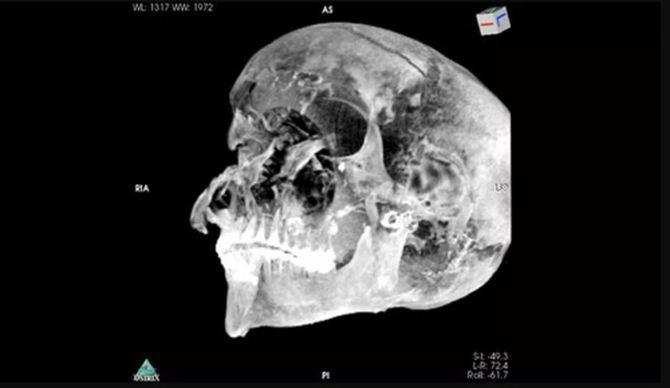 Le pharaon égyptien Seqenenre Taa II aurait été exécuté sur le champ de bataille (vidéo) By Jack35 1-49